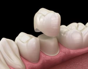 Dental crown premolar tooth assembly